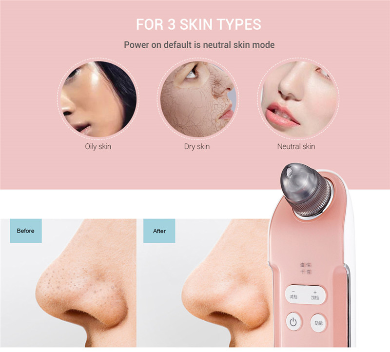 K-SKIN KD803A vacuum suction blackhead remover pore facial cleaner